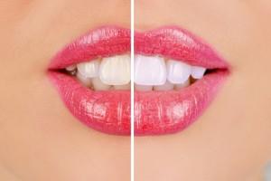Resultat av tandblekning